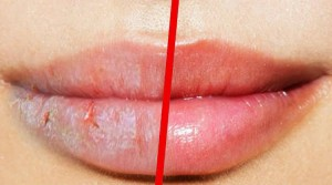 labios rachados